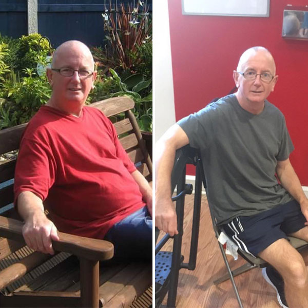 John before & after photo